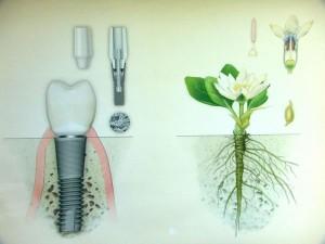 Методы имплантации зубов в клинике